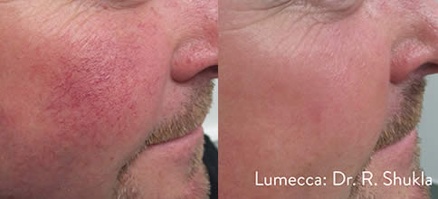Lumecca Before and After